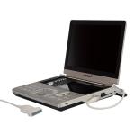 VINNO - Equipo de ultrasonido portátil modeloVINNO 5
