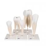 Modelos dentales
